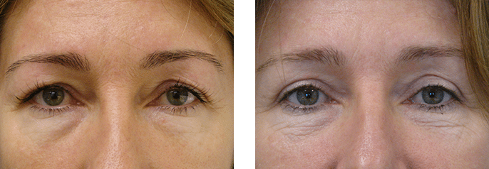 eyelid surgery gold coast