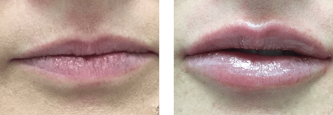 Lip Filler Cosmedic and Skin Clinic Patient 4
