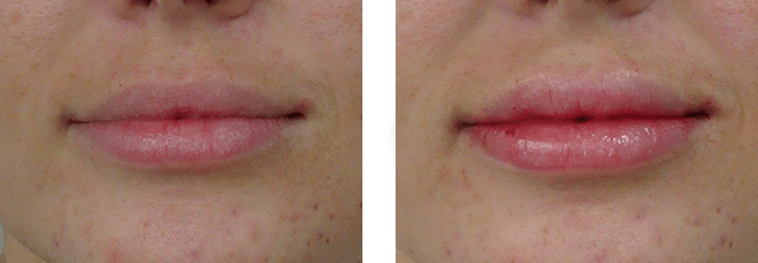 Lip Filler Cosmedic and Skin Clinic | Paitent--5