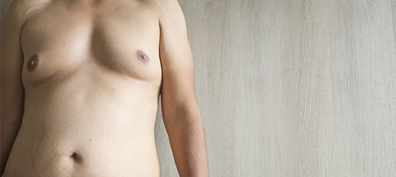 Male Breast Reduction (Gynecomastia) Gold Coast | Cosmedic & Skin Clinic